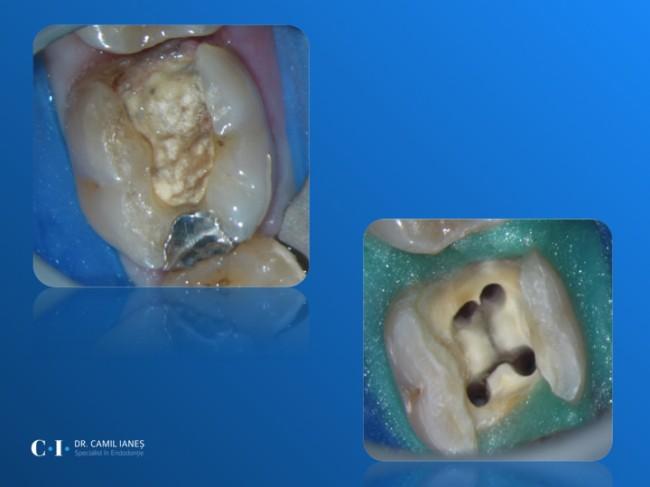 Molar inferior cu 2 canale distale