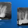 Endodontie eroica