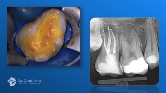 Molar secund superior - acces dificil