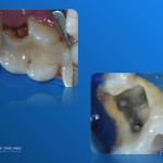Aspect clinic initial si istmul dintre canalele MV si ML