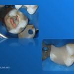 Refacerea adeziva a bontului coronar