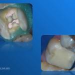 Obturatia endodontica si refacerea adeziva a bontului coronar